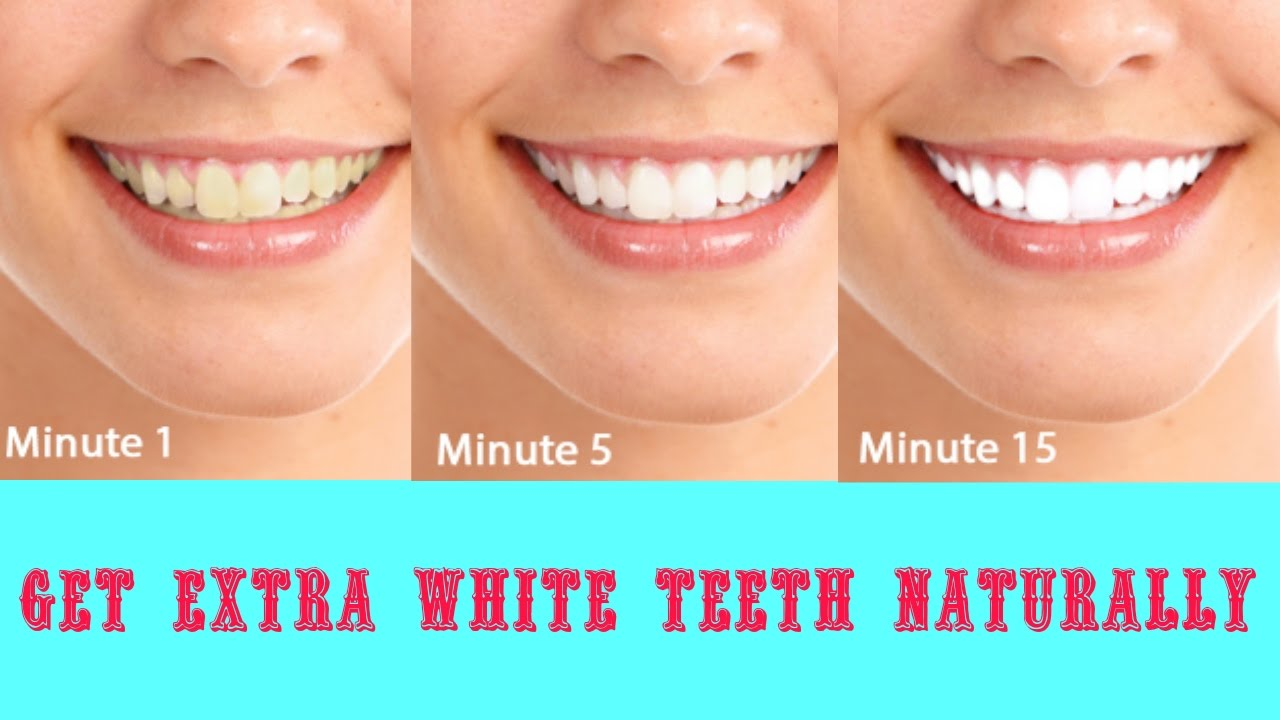 Make Your Teeth Crystal White Teeth with These 3-Natural Ways!